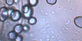 Informations sur la moisissure fungus