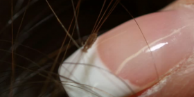 Prévenir l'infestation de poux pediculus humanus