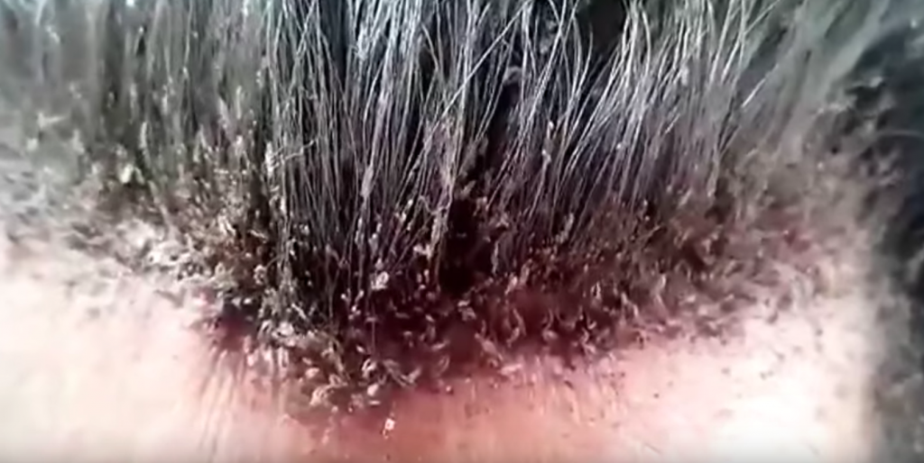 How To Get Rid Of Head Lice Control Pediculus Humanus