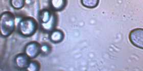 mold fungus information about